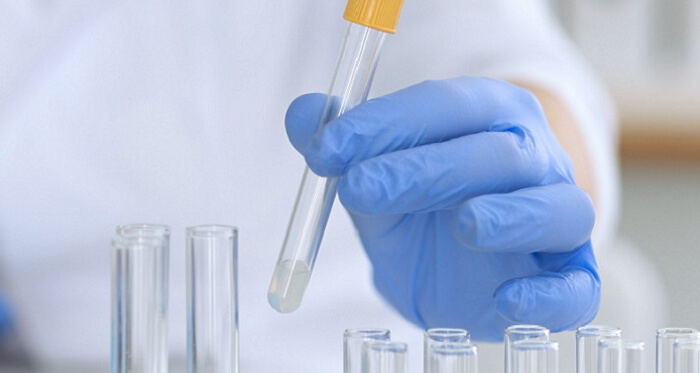 Тест на наркотики в Ростове-на-Дону - все виды тестирования на наркозависимость